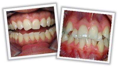 Зубы разной кривизны