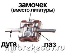 Конструкция безлигатурных брекетов