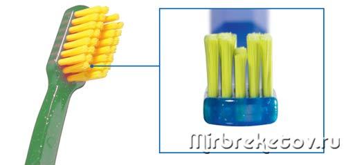 Зубная щетка для брекетов с V-образным вырезом