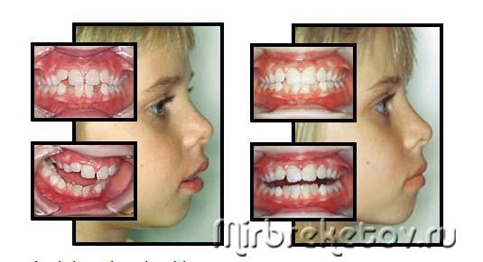 Фото результатата лечения с помощью трейнеров