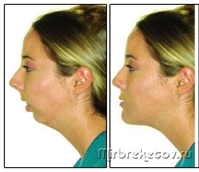 Фото: до и после исправления прикуса хирургическим путем