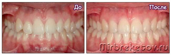 Фото: до и после лингвальных брекетов