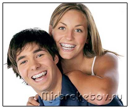 Фото: молодые мужчина и девушка с брекетами