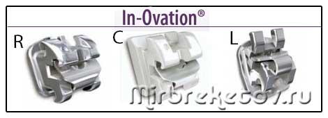 Изображение безлигатурных систем In Ovation