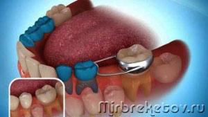 картинка-схема работы ортодонтического кольца